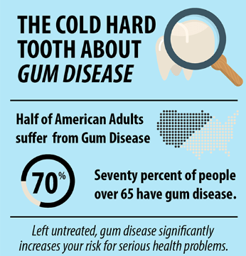 Gum Disease Information
