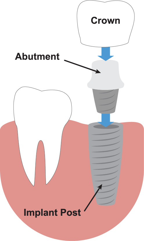 Crown / Abutment / Implant